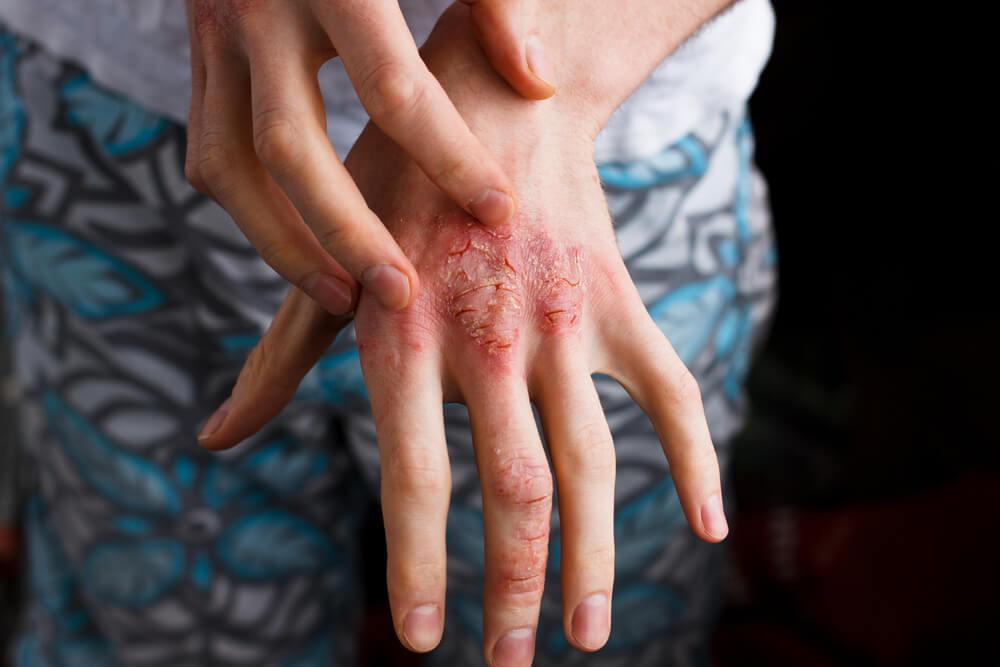 Psoriasis er arveligt, men kun 20 % udvikler sygdommen