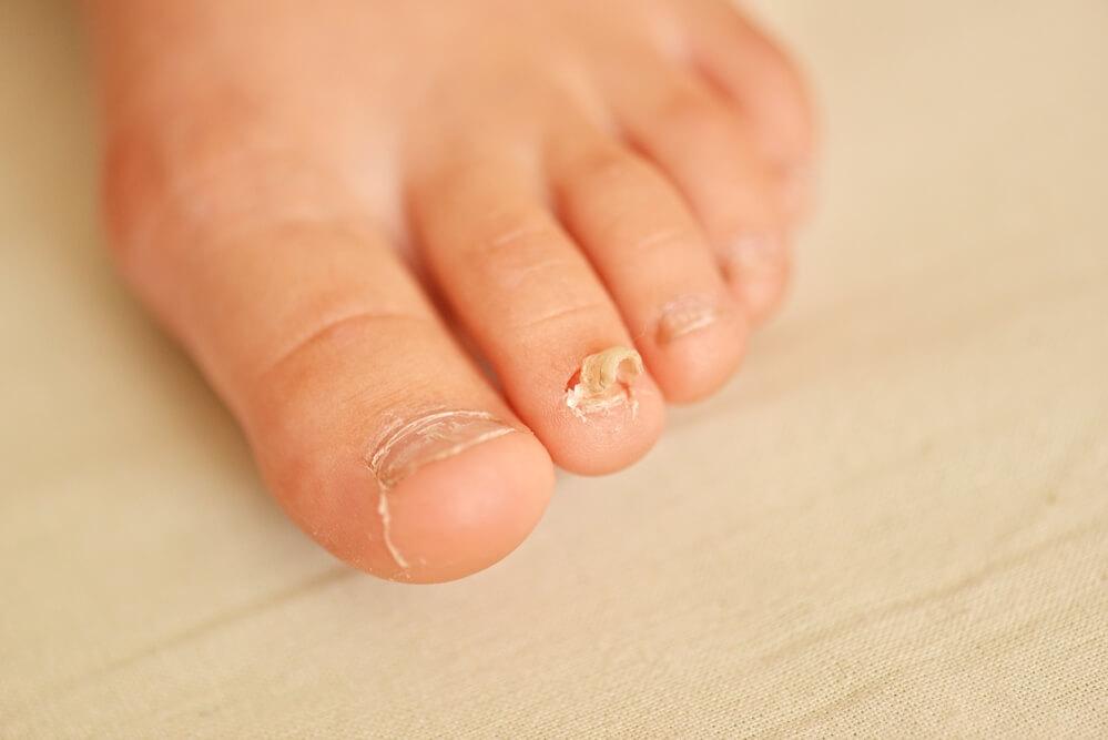 Bli av med din nagelsvamp