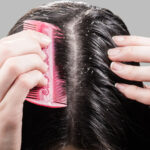 Mjäll i hårbotten