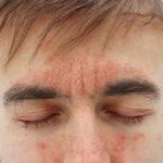 Psoriasis i ansiktet