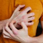 Psoriasis symptom