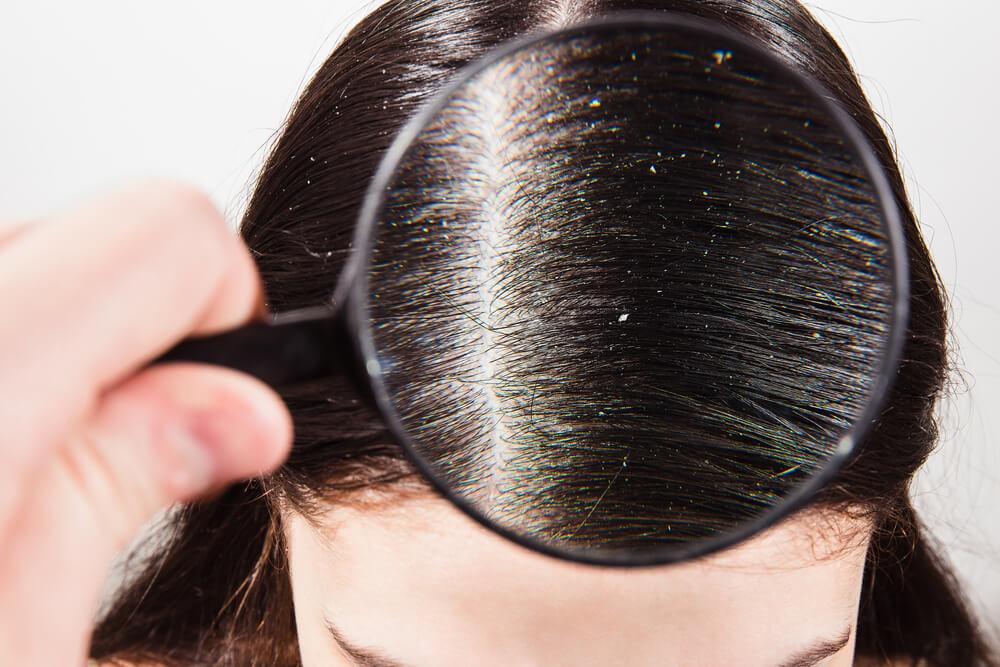 Vad är svamp i hårbotten