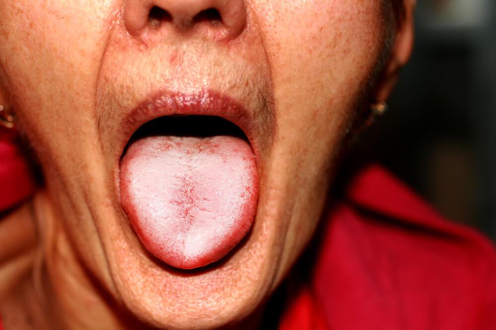 Allt du behöver veta om svamp på tungan