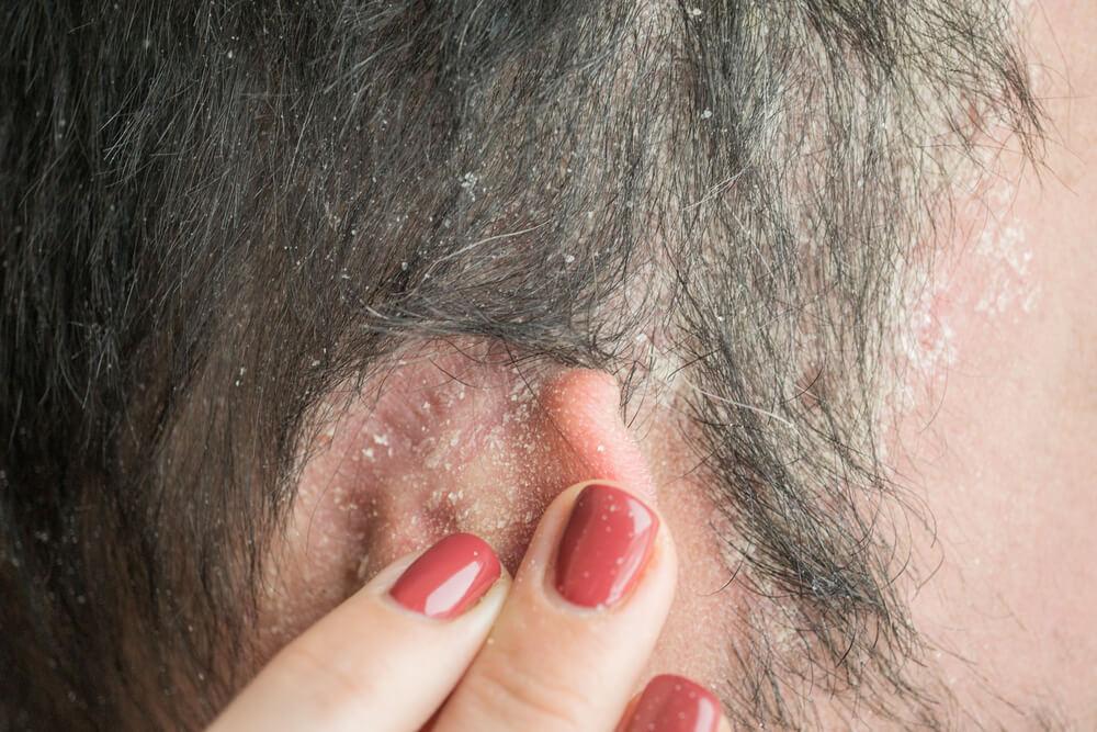 Hitta rätt schampo mot torr hårbotten