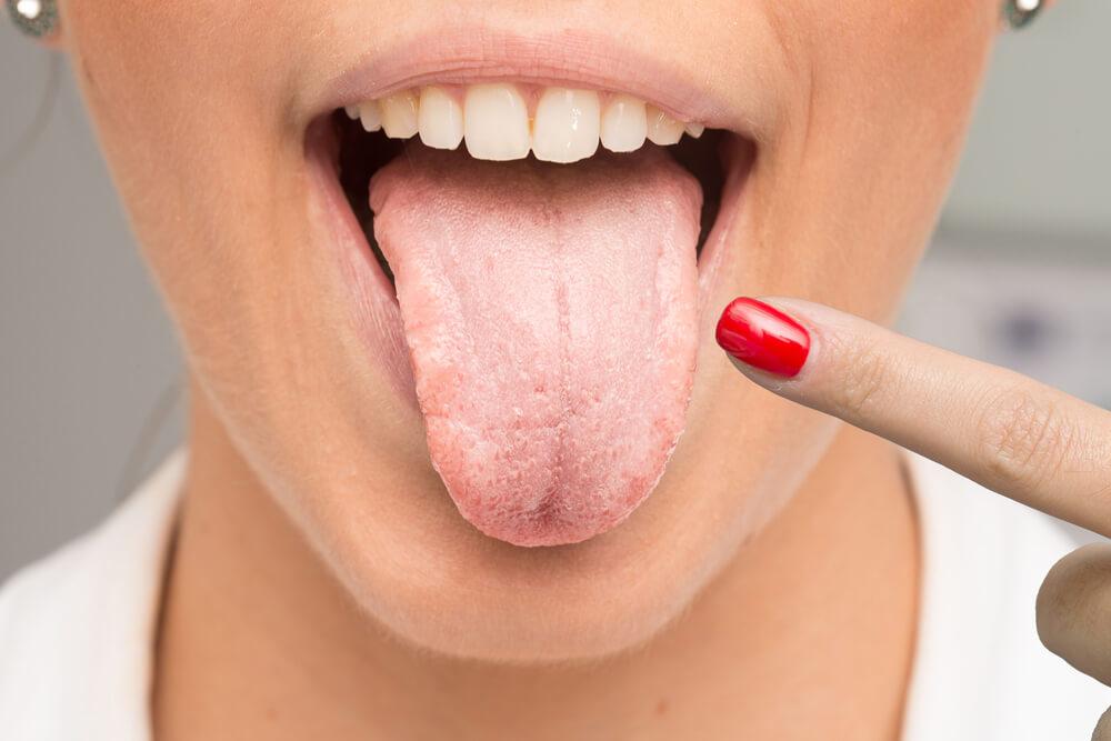Så behandlar du svamp i munnen